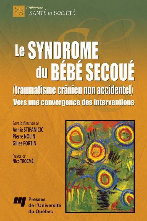 Pierre Nolin Le syndrome du bébé secoué (traumatisme crânien non accidentel)