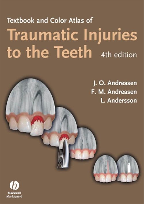 Frances M. Andreasen Jens O. Andreasen Textbook and color atlas of traumatic injuries to the teeth