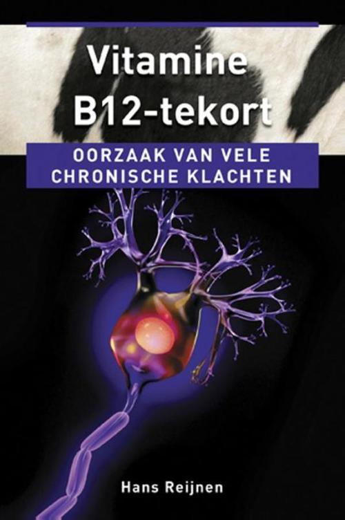 Vitamine B12-tekort