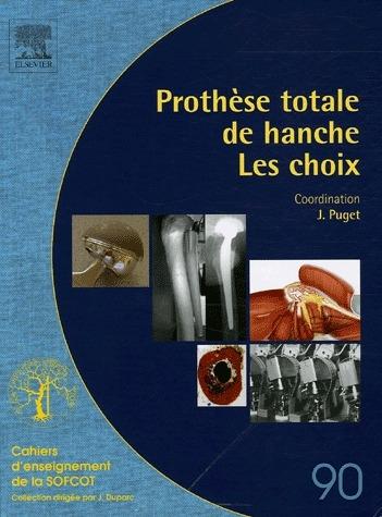 Prothèse totale de hanche ; les choix