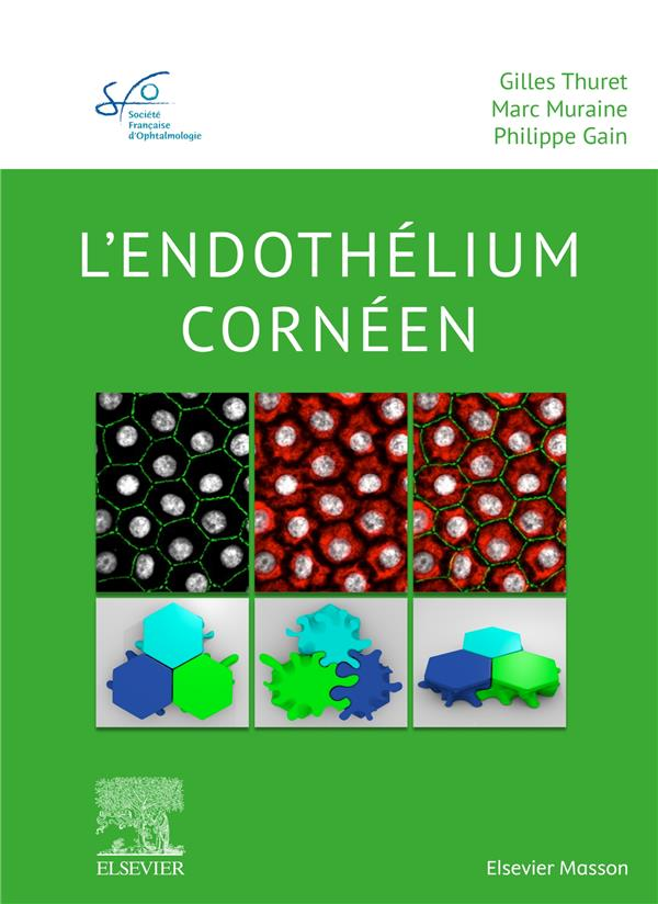 L'endothélium cornéen