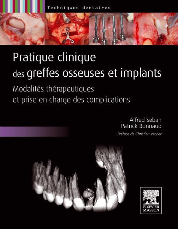 Pratiques Clinique Des Greffes Osseuses Et Implants ; Modalites Therapeutiques Et Prise En Charge Des Complications