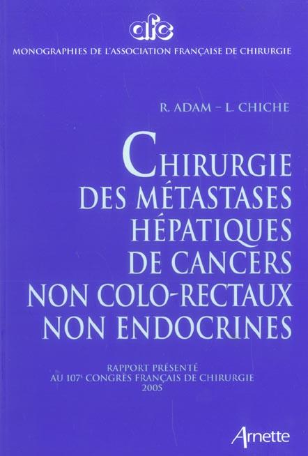 Chirurgie des metastases hepathiques des cancers non colorectaux non endocrines