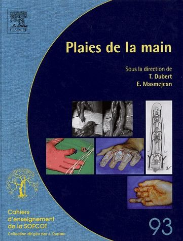 Plaies De La Main