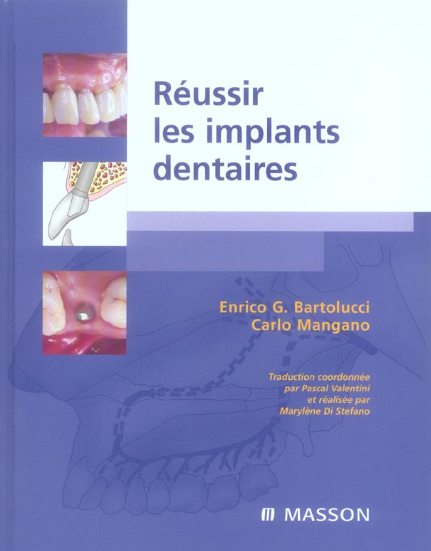 Reussir Les Implants Dentaires