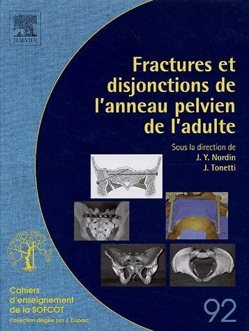 Fractures et disjonctions de l'anneau pelvien de l'adulte