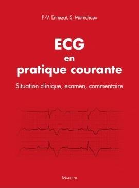 ECG en pratique courante ; situation clinique, interprétation, décision
