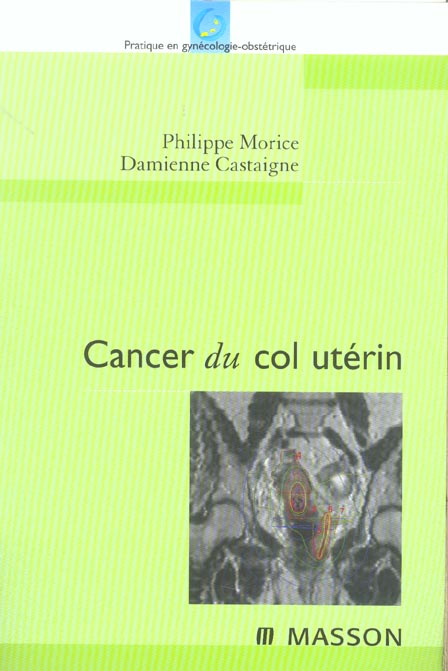 Cancer Du Col Uterin