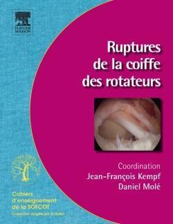 Traitement des ruptures de la coiffe des rotateurs