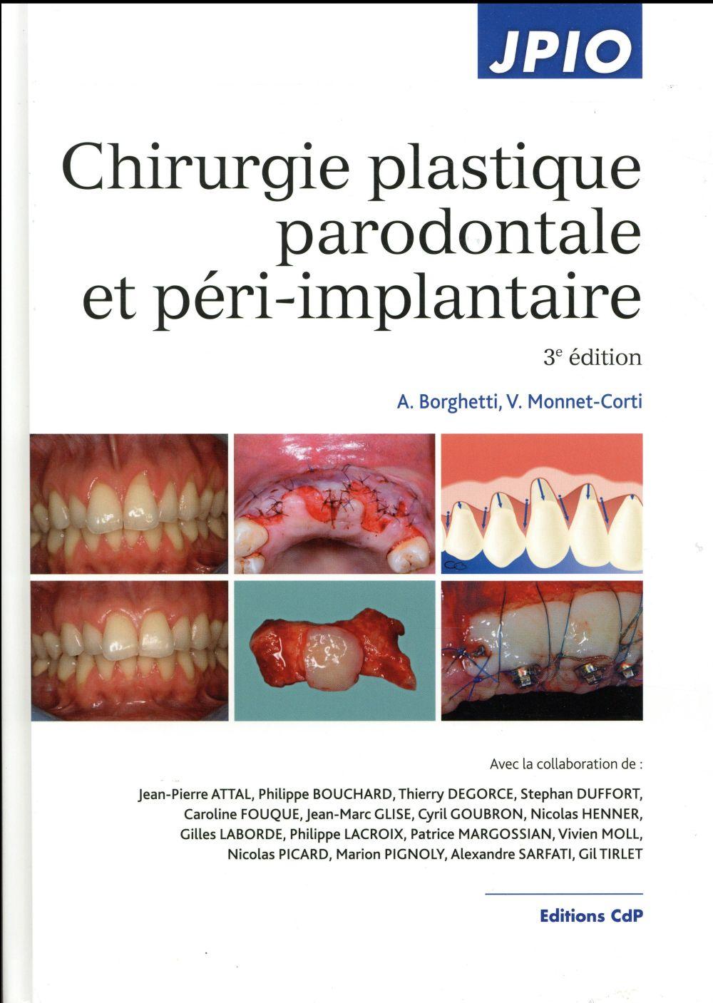 Chirurgie plastique parodontale et péri-implantaire (3e édition)