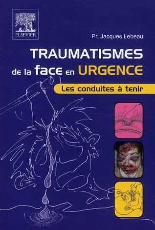 Traumatismes De La Face En Urgence