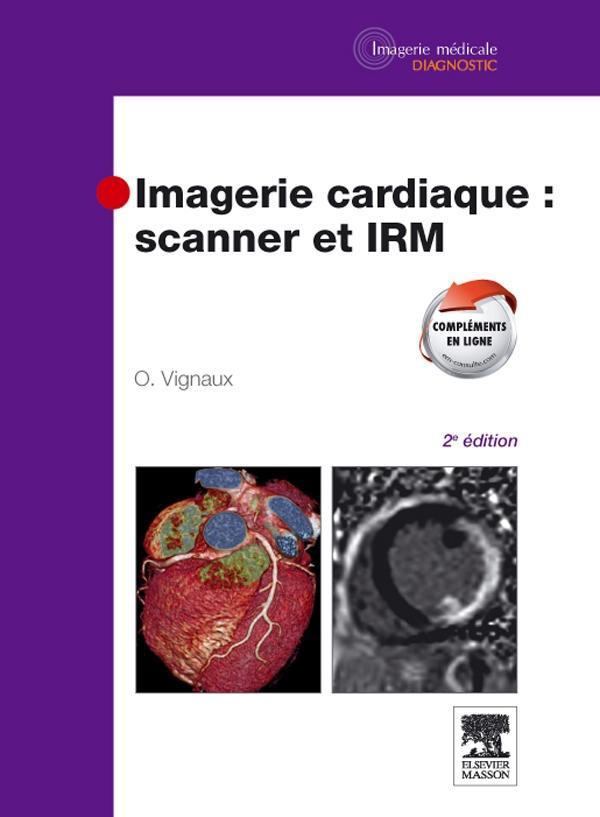 Imagerie Cardiaque : Scanner Et Irm (2e Edition)