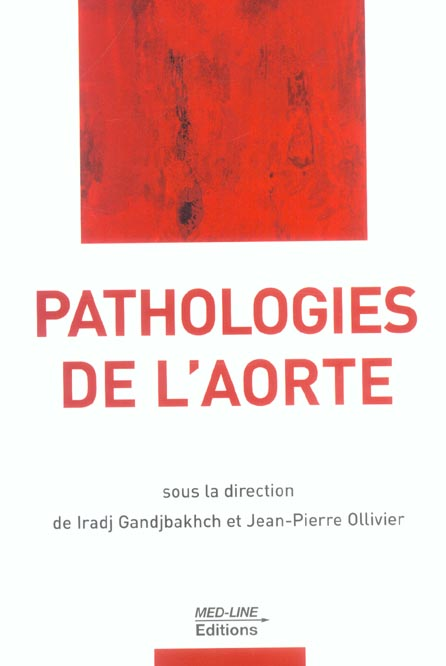 Pathologie de l'aorte