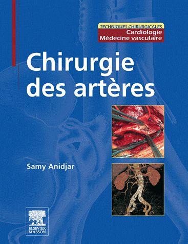 Chirurgie Des Arteres