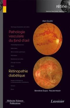 Pathologie vasculaire du fond d'oeil / Rétinopathie diabétique