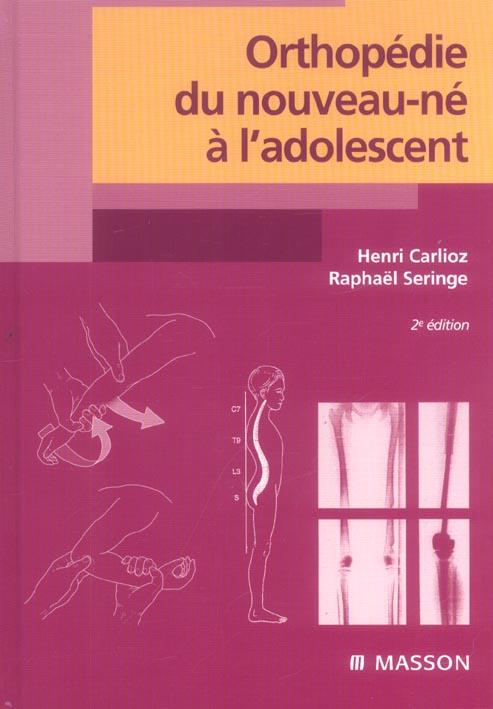 Orthopedie Du Nouveau-Ne A L'Adolescent