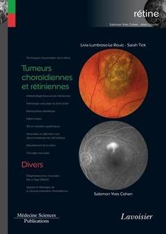 Tumeurs choroïdiennes et rétiniennes / Divers