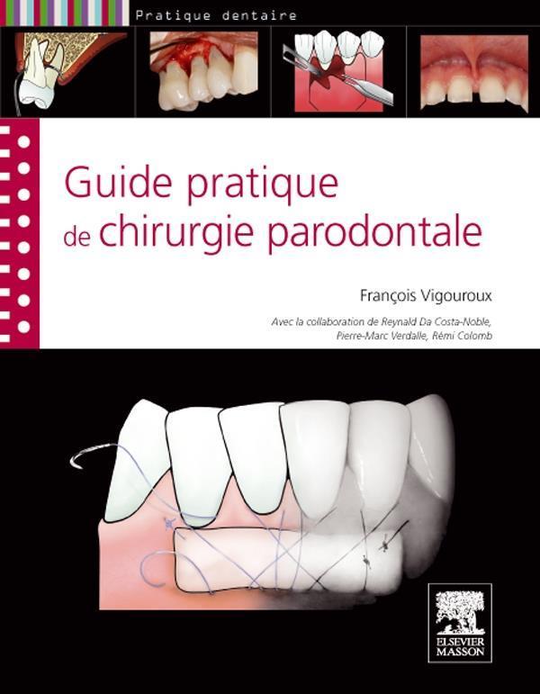 Guide Pratique De La Chirurgie Parodontale