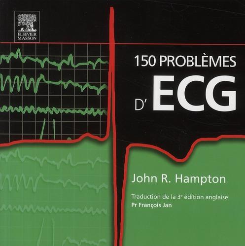 150 Problemes D'Ecg