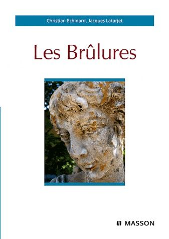 Les Brulures