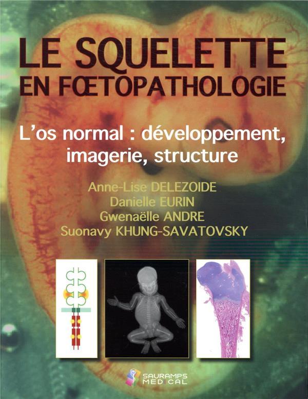 Le squelette en foetopathologie ; introduction à la pathologie squelettique foetale