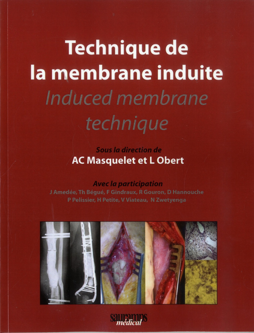 Technique De La Membrane Induite - Induced Membrane Technique
