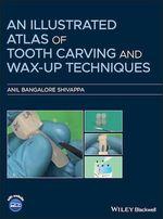 An Illustrated Atlas of Tooth Carving and Wax-Up Techniques  - Anil Bangalore Shivappa