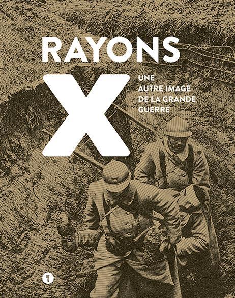 Rayons x ; une autre image de la Grande Guerre