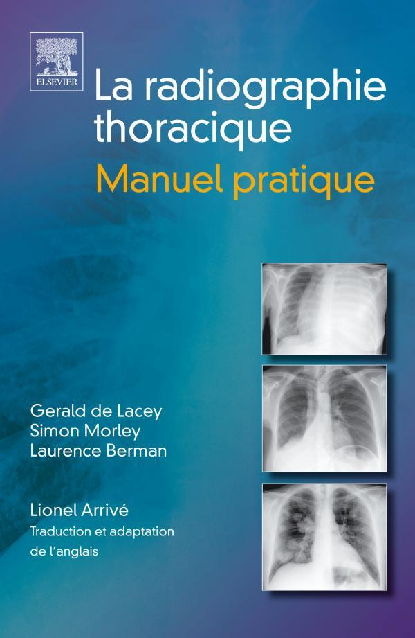 Radiographie Du Thorax