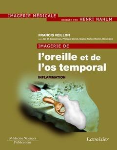 Imagerie de l'oreille et de l'os temporal t.2 ; inflammation