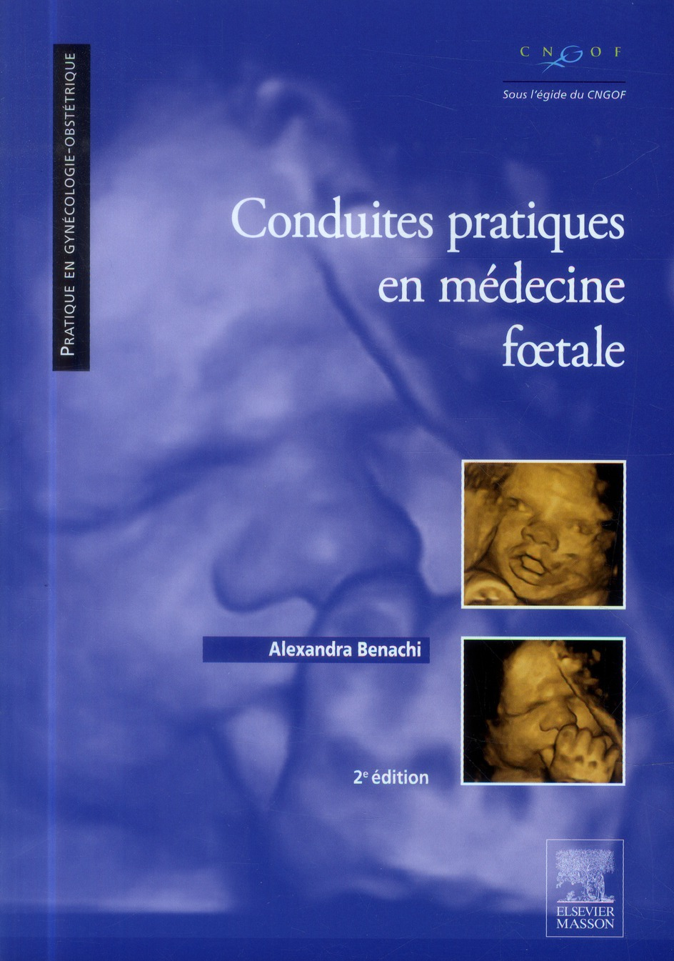Conduites pratiques en médecine foetale (2e édition)