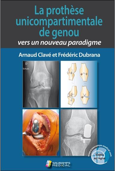 La prothèse unicompartimentale de genou ; vers un nouveau paradigme