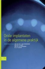 Orale implantaten in de algemene praktijk  - D. Van Steenberghe - I.E. Naert - A.P. Slagter - G.M. Raghoebar