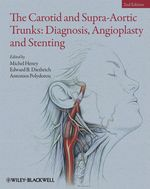 Vente Livre Numérique : The Carotid and Supra-Aortic Trunks  - Michel Henry - Edward B. Diethrich - Antonios Polydorou