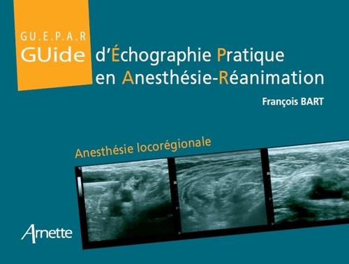 Guide d'échographie pratique en anesthésie réanimation ; anesthésie locorégionale