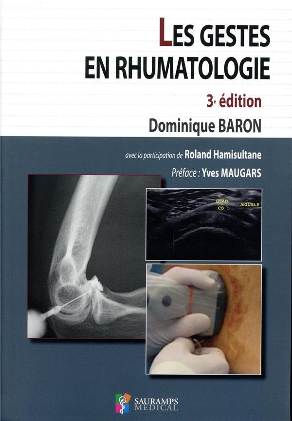 Les gestes en rhumatologie (3e édition)