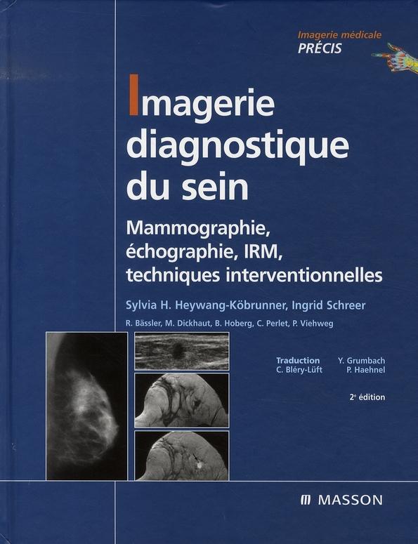 Imagerie Diagnostique Du Sein ; Mammographie, Echographie, Irm, Techniques Interventionnelles