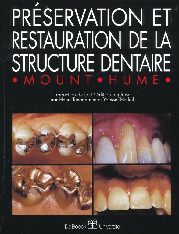 Preservation Et Restauration De La Structure Dentaire