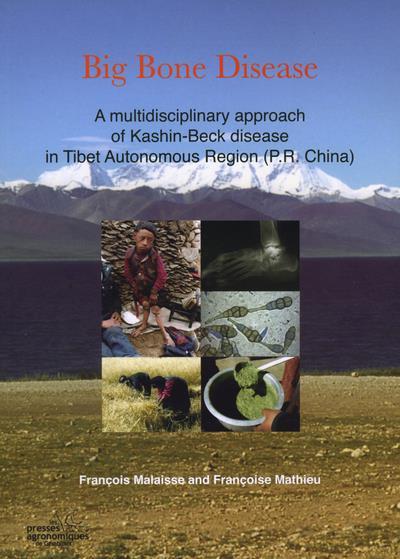 Big bone disease a multidisciplinary approach of kashinbeck disease in tibetautonomous region p r ch